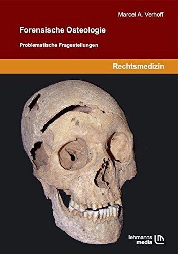 Forensische Osteologie: Problematische Fragestellungen