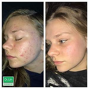 Dr. Lin Skincare Acne Spot Corrector, 1 Ounce