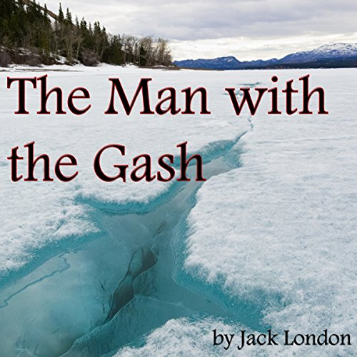 The Man with the Gash audiobook cover art