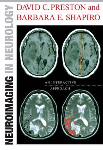 Neuroimaging in Neurology: An Interactive CD