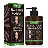 Igia Anti Hair Loss Shampoos - Best Reviews Guide