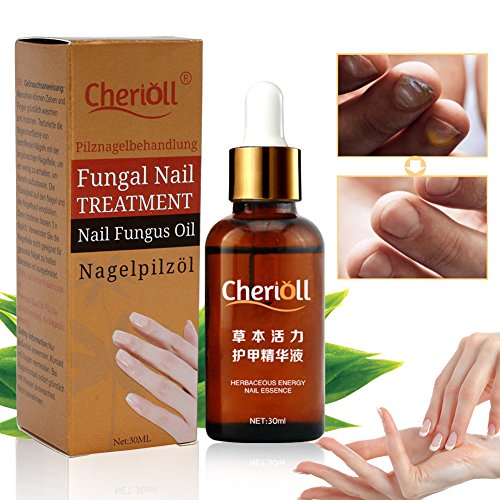 Toenail Fungus Treatment, Fungus Stop, Anti-Fungal, Natural Topical Anti-Fungal Solution with Pure Essential Oils - Removes Yellow from Infected Finger