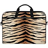 Tiger Zebra Animal Print Laptop Case Bolsa Funda Portátil Crossbody Messenger Maletín Convertible W/Strap Pocket para Macbook Air Pro Surface DELL ASUS HP Lenovo,14-14.5 Pulgadas