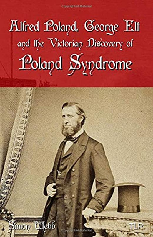 小間腐食する反発Alfred Poland, George Elt and the Victorian Discovery of Poland Syndrome