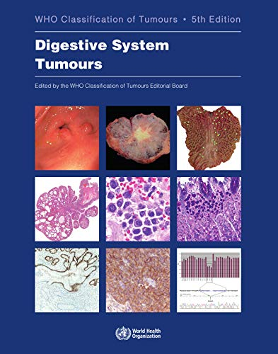Compare Textbook Prices for Digestive System Tumours Medicine 5 Edition ISBN 9789283244998 by WHO Classification of Tumours Editorial Board