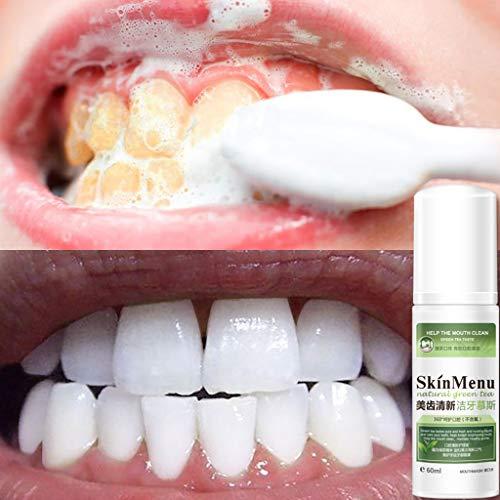 TwoCC Skin Menu Cleansing Mousse Zahnreiniger Zahnaufhellungsschaum Zahnpasta Natürliches Mundwasser Zahnpflege 60Ml