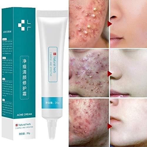 20 g de crema antiacné para eliminar cicatrices de acné, gel blanqueador hidratante para el cuidado facial para una piel lisa y suave