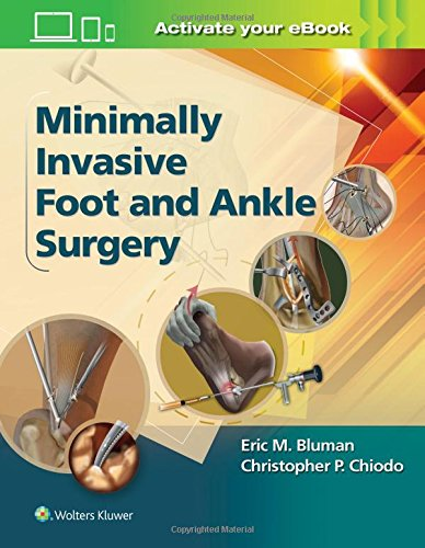 Minimally Invasive Foot & Ankle Surgery (Minimally Invasive Orthopaedic Surgery)