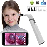 Wireless Otoscope Ear Camera with Dual View, 3.9mm 720PHD WiFi Ear Scope with 6 LED Lights...