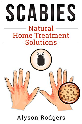 Scabies Natural Home Treatment Solution by [Alyson Rodgers]