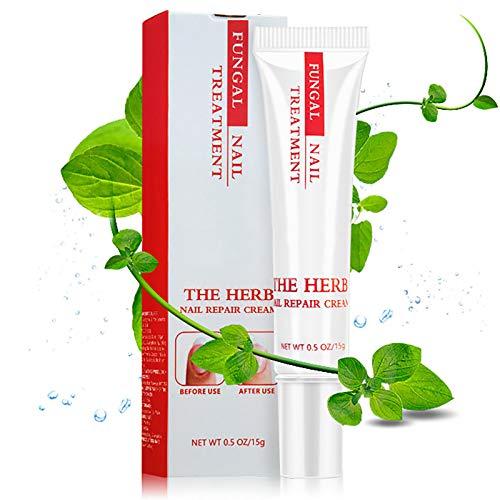 Fungal Nail Treatment, Fungal Nail Treatment for Toenails Extra Strong, Anti-Fungal Toenail Cream,...