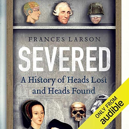 Severed Audiobook By Frances Larson cover art