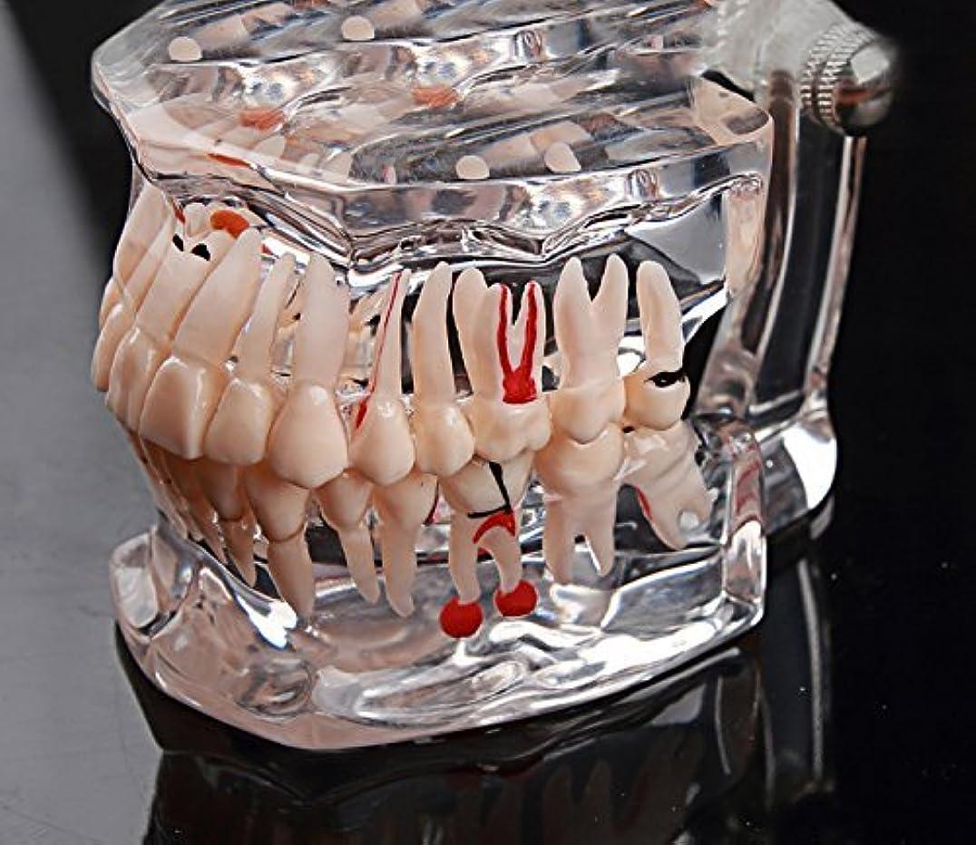 着る顕微鏡立ち寄るGoDen大人と小児歯科 歯科疾患展示?説明用模型