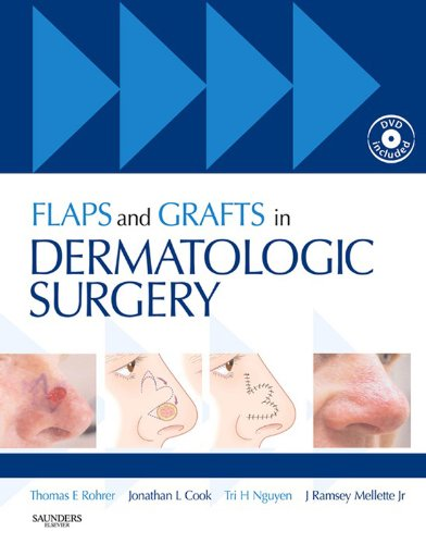 Flaps and Grafts in Dermatologic Surgery: Text with DVD (English Edition)