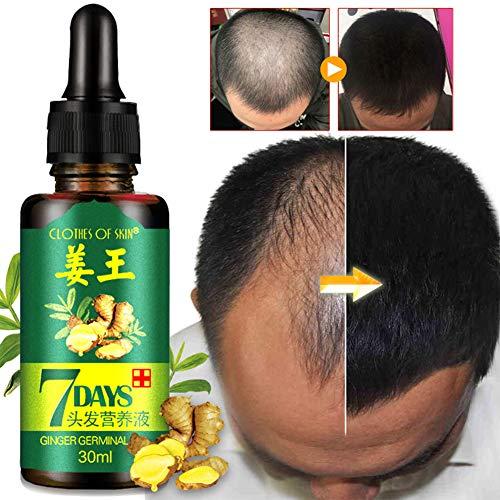 weixinbuy Huile de germe de gingembre, sérum de croissance des cheveux, traitement contre la perte des cheveux, sérum pour les cheveux renforce les racines des cheveux, pour les hommes et les femmes