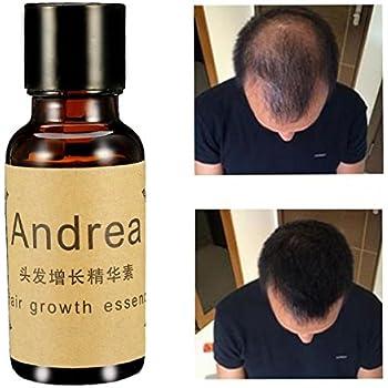 LM Líquido crecepelo, esencia para un rápido crecimiento del pelo, para hombres y mujeres, 20ml