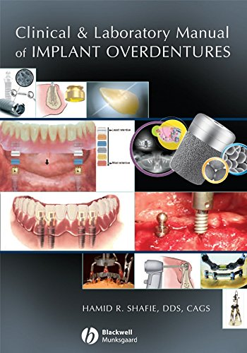 Image OfClinical And Laboratory Manual Of Implant Overdentures