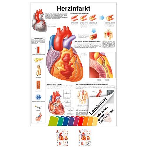 Herzinfarkt Poster Anatomie 70x50 cm medizinische Lehrmittel