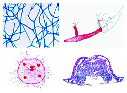 Biologie Mikroskopie Mikropräparate Serien_ Einzeller (Protozoa)