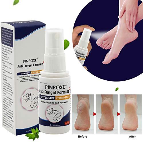 Desodorante Pies, Spray Pies, Elimina el olor de pies, Que elimina malos olores de pies y calzado, Ayuda a combatir el pie de atleta y a mantener los pies frescos