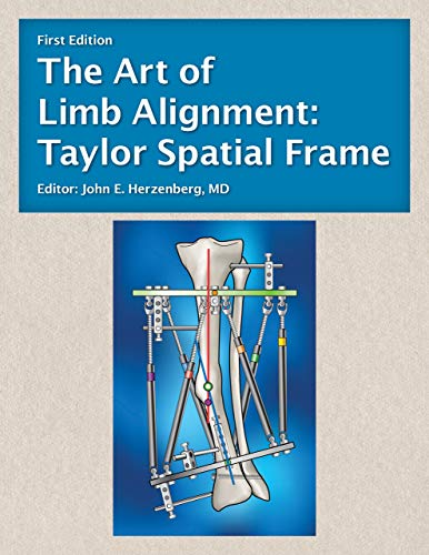 The Art of Limb Alignment: Taylor Spatial Frame - Original PDF