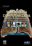 Tomografía computarizada dirigida a técnicos superiores en imagen para el diagnóstico (2ª ed.)