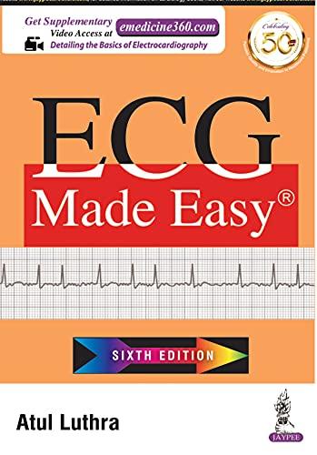ECG Made Easy (English Edition)