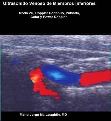 Ultrasonido venoso de miembros inferiores