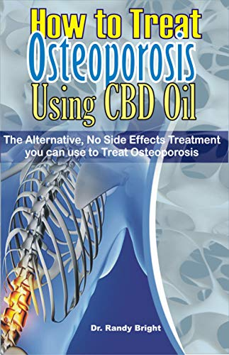 How to Treat Osteoporosis Using CBD Oil:...
