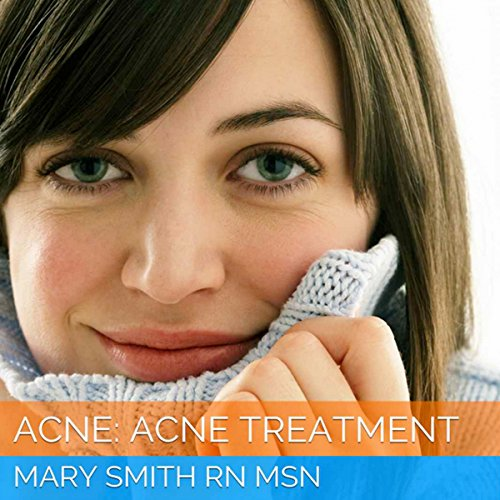 Acne: Acne Treatment audiobook cover art