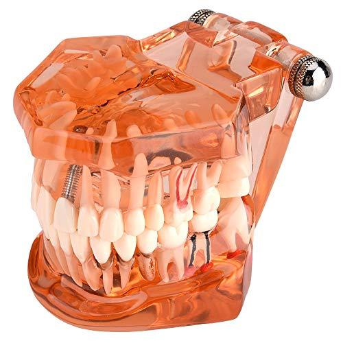 Zähne Modell, 1 Stück Dental Zähne Zahnmodell Für Zahnprotesen Demonstration Studie Lehre, Orange