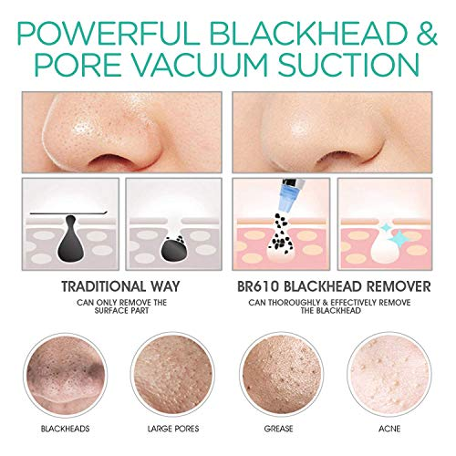 Voyor Blackhead Vacuum Extractor