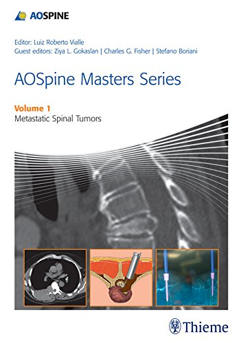 AOSpine Masters Series Volume 1: Metastatic Spinal Tumors (English Edition)
