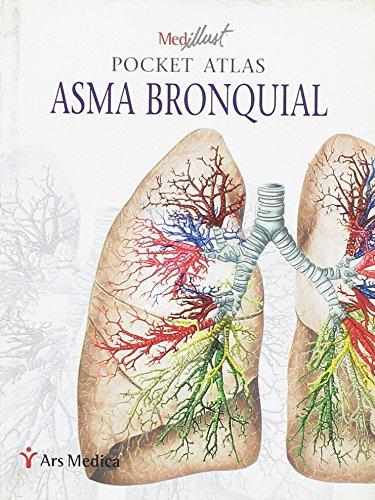 Asma bronquial. Pocket atlas