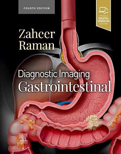 Compare Textbook Prices for Diagnostic Imaging: Gastrointestinal 4 Edition ISBN 9780323824989 by Zaheer MD, Atif,Raman MD, Siva P