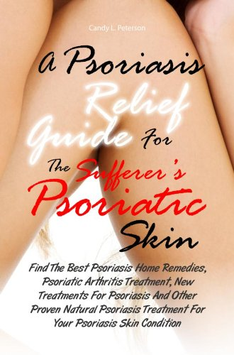 A Psoriasis Relief Guide For The Sufferer's Psoriatic Skin:Find The Best Psoriasis Home Remedies, Psoriatic Arthritis Treatment, New Treatments For Psoriasis