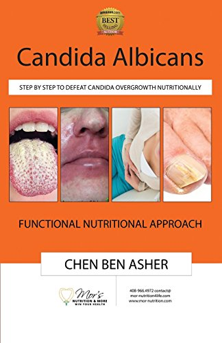Candida Albicans: Step by Step to Defeat Candida Overgrowth Nutritionally