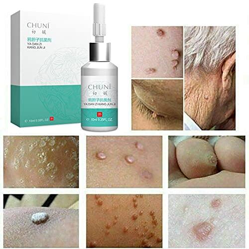 FONGDY Wart Remover Liquid Verruca Treatment Skin Tag Removal Kit Verrues Traitement Dissolvant De Verrue Acrochordon Cryotherapie Plantaire Cryo Corps