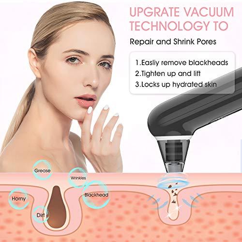 Porenreiniger Mitesserentferner Porensauger Mitesser Sauger Whitehead-Entfernung, Gesichtsstraffung, Pore Cleanser Gesicht Reinigung mit LED-Bildschirm und 4 Sonden und 3 Modi