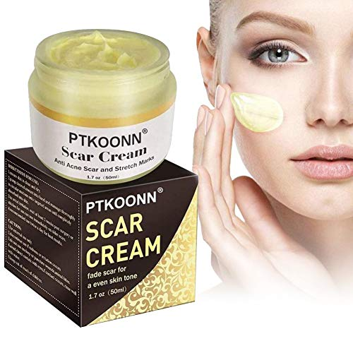 Scars Remover Cream,Scars Cream,Scars Repair Cream,Treatment for Face Body Scar, Acne Spots, C-Sections, Burn, Acne, Old & New Scars, Stretch Marks