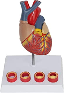 YXZQ Anatomical Human Organ Model - Human Anatomical Model Thrombosis Model 1:1 Life Size Teaching Model - for Medical Edu...