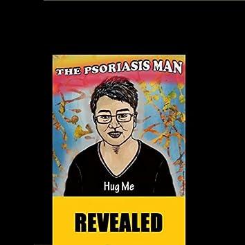The Psoriasis Man: Revealed