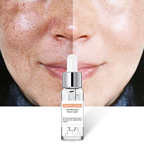 ONEWELL Salicylic Acid Solution Oil Control Remove Pimples Blackheads Pores Shrinking Essential Liquid Dark Spot Corrector Remover for Face Anti Aging Anti-Wrinkle Facial Serum