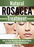Natural Rosacea Treatment: How to Treat Rosacea with Natural Home Remedies and Diet Modifications