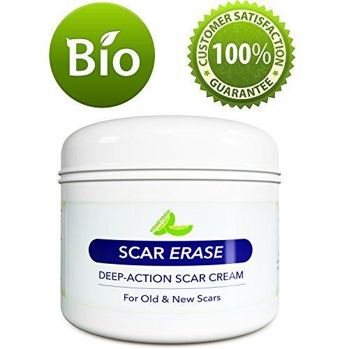 All Natural Scar Removal Cream For Face Legs Body Scar Cream
