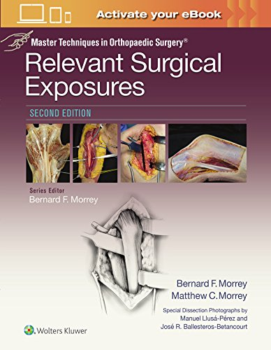 Relevant Surgical Exposures (Master Techniques in Orthopaedic Surgery)