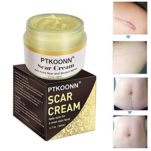 Narbencreme,Narbensalbe,Narbe gel,Narbenentfernung,Scar cream,Narbe Creme Narbe Behandlung,Scar Fade Cream,Behandeln Sie neue und alte Narben - Aknenarben, Dehnungsstreifen und Narben