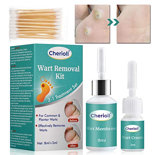 Wart Remover, Plantar Wart Removal, Corn Callus Remover, Wart Removal with Natural Ingredients, Stops Wart Regrowth