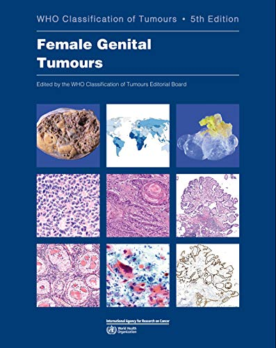 Compare Textbook Prices for DEFAULT_SET: Female Genital Tumours: WHO Classification of Tumours Medicine 5 Edition ISBN 9789283245049 by WHO Classification of Tumours Editorial Board