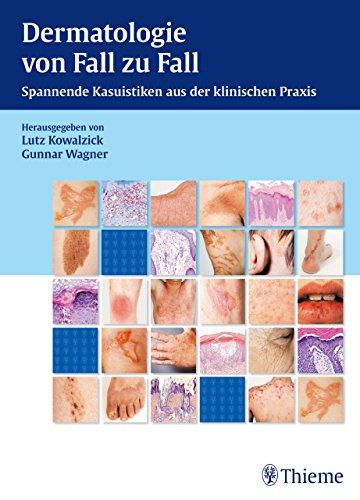 Dermatologie von Fall zu Fall: Spannende Kasuistiken aus der klinischen Praxis